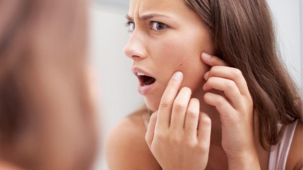 Benessere Femminile Acne-da-stress-780x438 Acne da stress: ecco i rimedi naturali