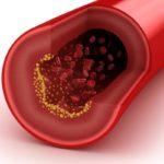 Benessere Femminile colesterolo-150x150 Ridurre il livello di Colesterolo è possibile