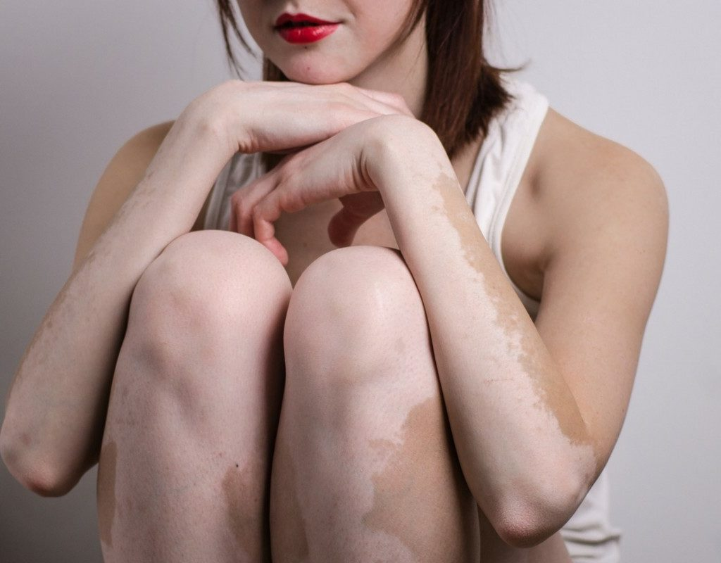 Benessere Femminile Progetto-senza-titolo33-1024x800 La Vitiligine: cos'è e come si può alleviare