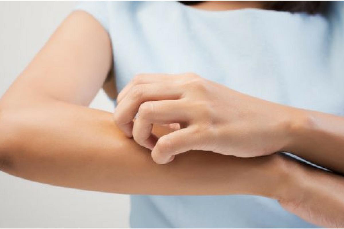 Benessere Femminile Progetto-senza-titolo-4 Le 5 malattie della pelle più comuni