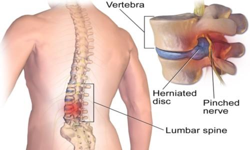 Nevrite: cause, sintomi, cure e prevenzione